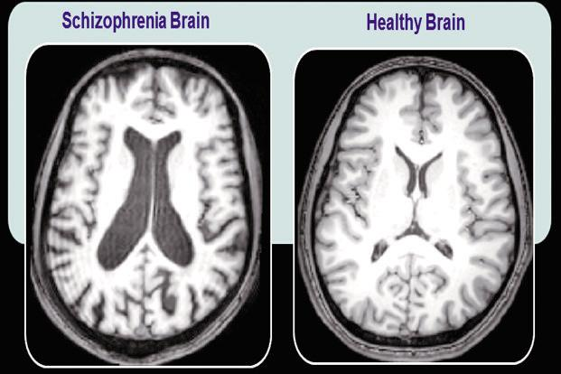 an overview of the schizophrenia illness in medical research Investigator, center for psychiatric neuroscience feinstein institute for medical research medical director, recognition and prevention (rap) program, the zucker hillside hospital department of psychiatry.